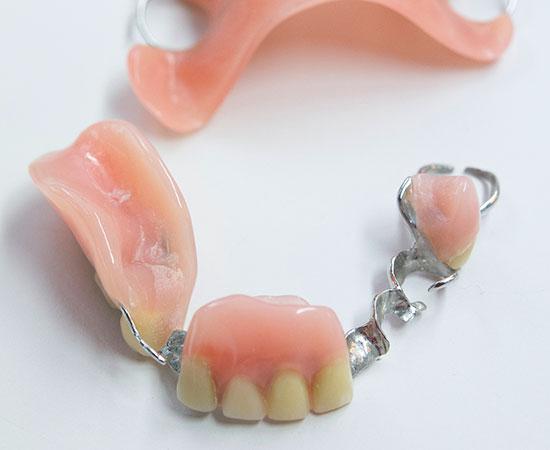 hammaslaakarikeskus-kiille-erikoishammasteknikkopalvelut-12
